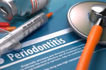 parodontita - inflamatia tesuturilor dintelui si gingiei