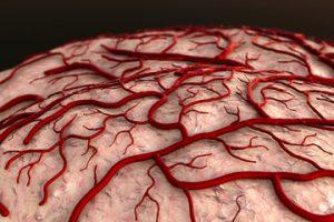 Producerea de fructoză din glucoză la nivelul creierului in hiperglicemie