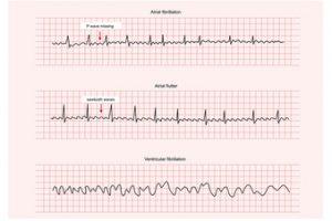 Fibrilatia ventriculară