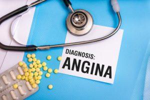 imagine cu angina pectorala stabila