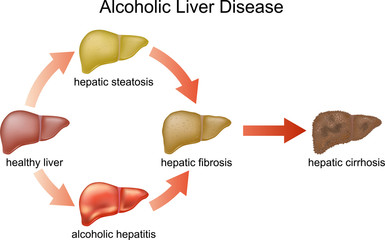 etiopatogenia cirozei hepatice alcoolice