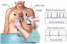 cardioversia electrica
