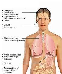 simptome intoxicatie monoxid de carbon