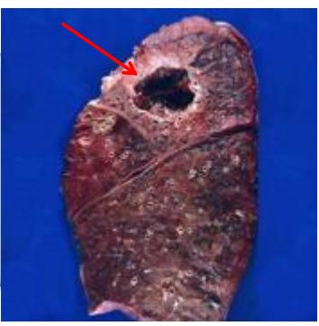 scăderea în greutate a abcesului pulmonar