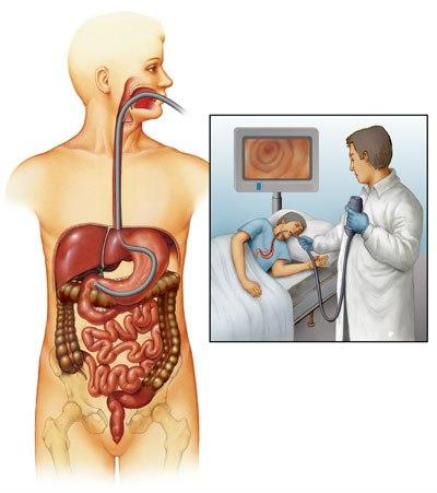 Rolul endoscopiei în hemoragia digestivă superioară