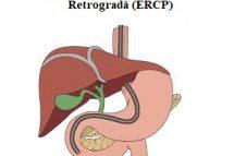 Colangio-pancreatografia endoscopică retrogradă