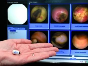videocapsula endoscopica