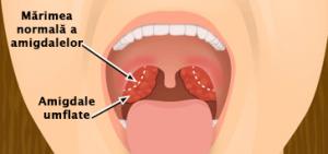 dureri articulare și amigdalectomie