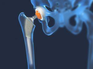 manifestări clinice ale artrozei articulației șoldului