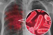 Tuberculoza multidrog rezistentă