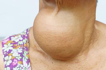 Hipertiroidismul - cauze, simptome, tratament