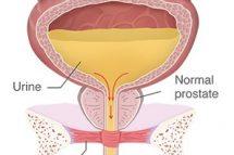 vezica urinara